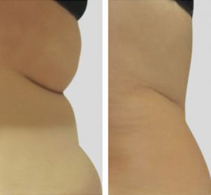 hips treatment results before and after