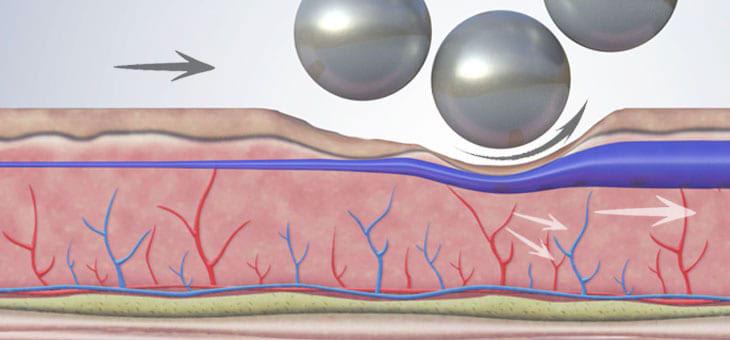 Body treatment draining action